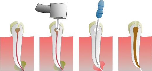 Hoe verloopt een wortelkanaalbehandeling?